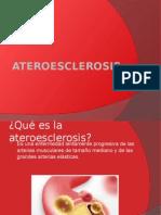 Ateroesclerosis Control de Enfermedades Cronico Degenerativas