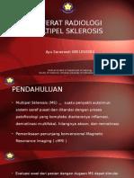 Referat radiologi Multiple Sclerosis