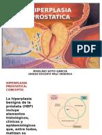 hiperplasiaprostaticapresentacion20072-131127013146-phpapp02