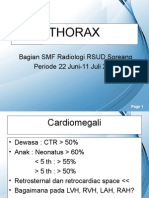 Ppt Gambaran Ro Thorax Abnormal