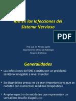 Rmi Neuroinfecciones