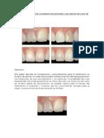 paper blanqueamiento no vital.pdf
