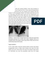 Jurnal-radiologi