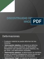 Discontinuidad Del Macizo