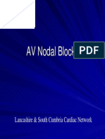 Av Nodal Blocks(Hb)