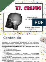 cráneo rx