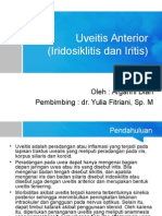 Iridosiklitis, iritis