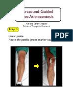 Knee Arthrocentesis Nagdev