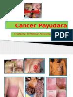 Cancer Payudara