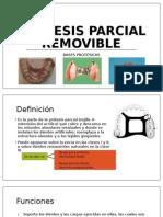 Prótesis Parcial Removible; Bases Protésicas
