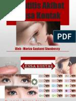 Keratitis Akibat Lensa Kontak