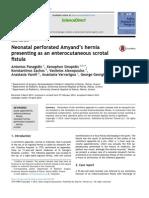 jurnal appendicitis