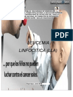 Caso Clinico  Leusemia Linfocitica