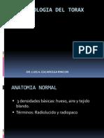 SEMIOLOGIA RADIOLOGICA DEL TORAX.pdf