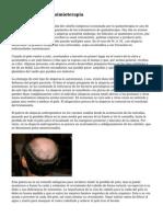 Caida Del Pelo Y Quimioterapia
