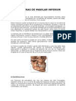 Fracturas de Maxilar Inferior