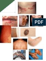 imagenes lesiones dermatologicas