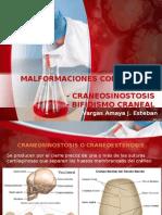 Anomalias Del Desarrollo(Craneosinostosis y Bifidismo Craneal)