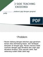 BST Exodonsi