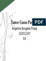 Tumor Ganas Parotis