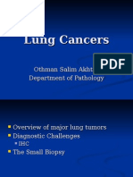 Lung Cancers an Overview