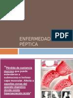Peptic A