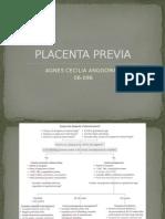 Placenta Previa Ppt