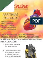 ARRITMIAS CARDIACAS Ucacue