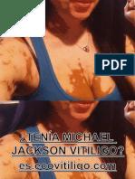 ¿Tenia Michael Jackson vitiligo?