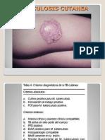 4tuberculosis Sifilislepra 110204223410 Phpapp02