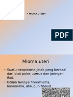 Mioma Uteri Ppt