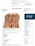 Stanford Medicine 25 Blog _ What is the Specific Cause of This Patient's Clubbing