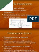 Tipuri de Timpanograma.ppt Mada