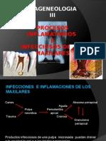 Procesos Inf e Infec de Maxilares