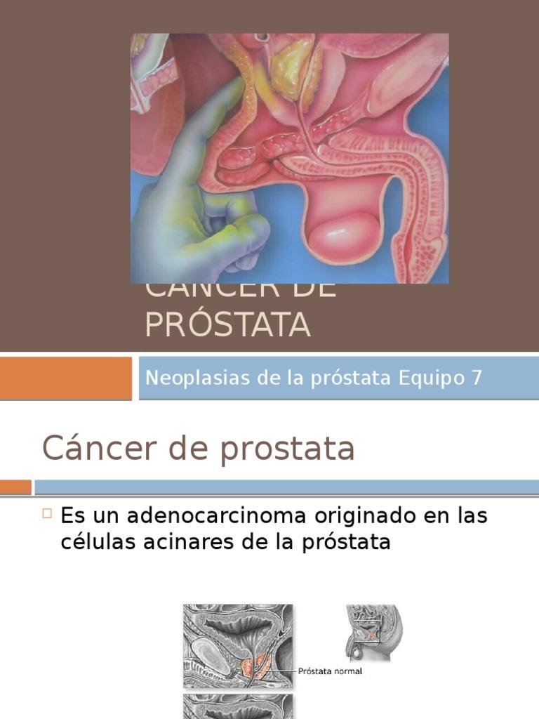 carcinoma de células de transición de próstata