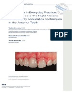 Composite in Everyday Practice- How to Choose the Right Material and Simplify Application Techniques in the Anterior Teeth