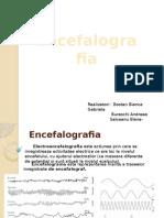 Elecreoencefalograful