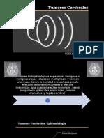 introducción a los tumores intracraneales ,astrocitoma