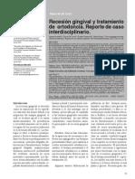 Recesión gingival y tratamiento de ortodoncia. Reporte de caso interdisciplinario.