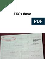 Ekgs - Consolidado - 8tavo