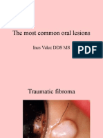 most common oral lesions.ppt
