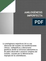 Amilogénesis Imperfecta