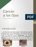Cancer a Los Ojos