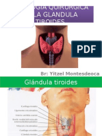 patologia de la tiroides