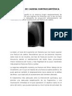 Fractura de Cadera Intertocanterica