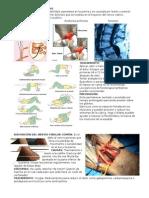 Lesiones Plexo Sacro