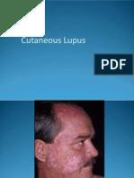 Cutaneous_Lupus_Erythematosus.pdf