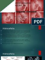gonzales hidrocefalia