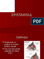 Epistaxisul pdf