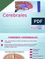 Seminario de Tumores Cerebrales